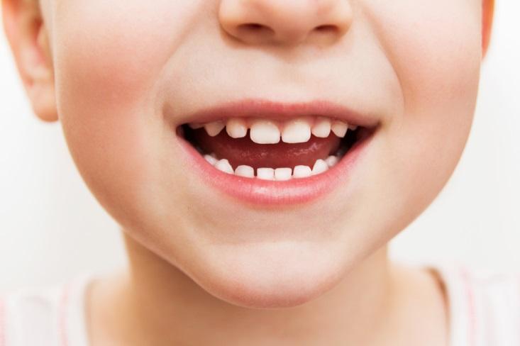 Gigi Berlubang, Penyebab Bau Mulut Pada Anak, Hindari dengan Cara Ini!