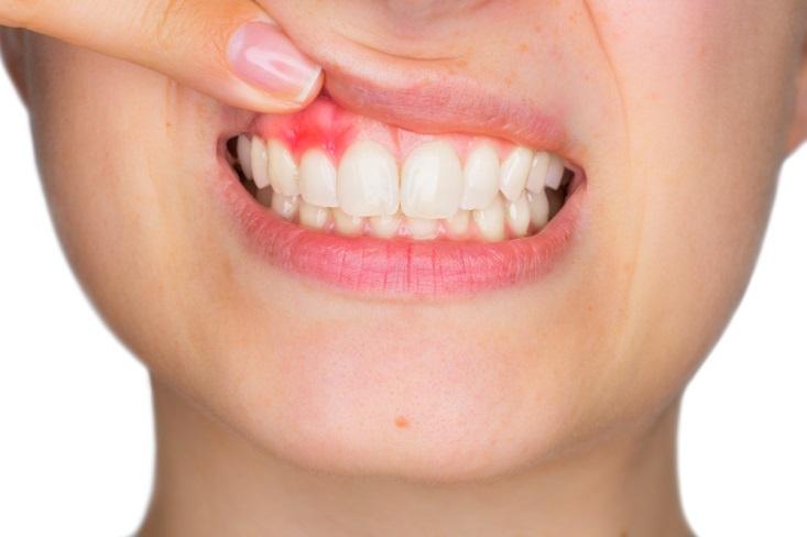 Melindungi gusi dan gigi