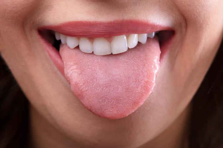 Mencegah mulut kering